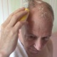 Bean-b-Clean brush used to clean scalp after surgery
